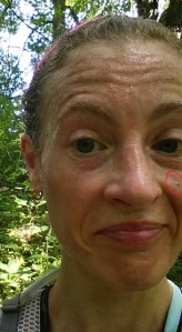 I was able to find a close-up of my mug I took while running. Nice sweaty photo! The circled spot is the 'weird spot'