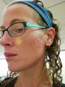 Biopsy bandaid, the red circle is where I had the cryotherapy for actinic keratosis.